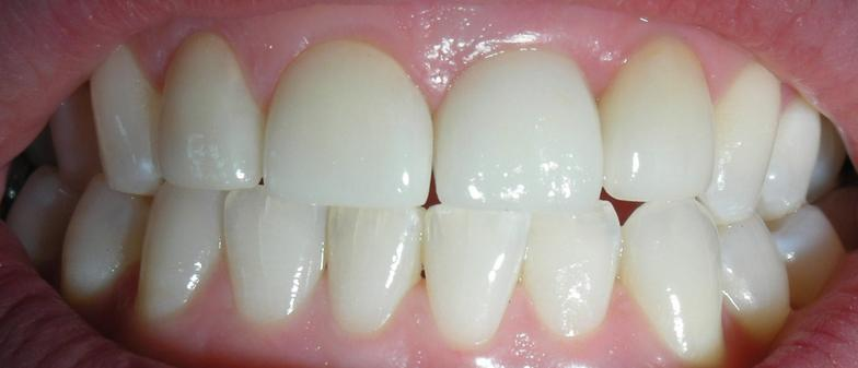 after photo of teeth whitening