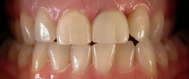 teeth whitening before photo for dentist 63368