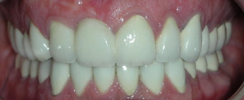 after photo for porcelain crowns by dentist in ofallon MO