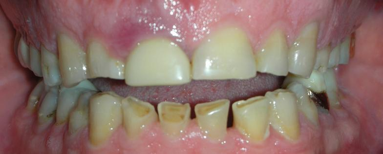 o'fallon mo dentist patient before photo for crowns