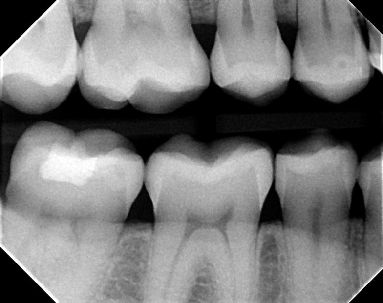 Digital bitewing xrays by dentist 63368